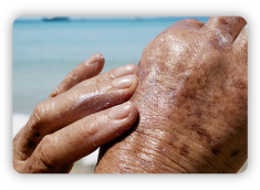 Sun-damage_The-effects-of-sun-damage_Aged-skin