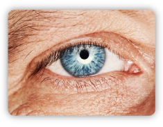 Sun-damage_The-effects-of-sun-damage_Fine-lines-around-theeye